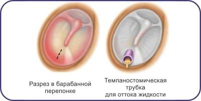 Прокол барабанної перетинки при отиті: причини і наслідки