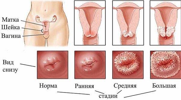 Що таке хронічний цервікоз