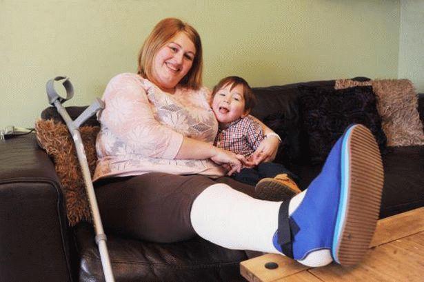 Чому під час місячних болять ноги: причини болю в суглобах і венах