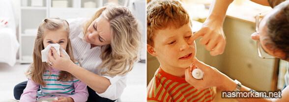 Мазь від нежиті, соплів і закладеності носа: список кращих засобів