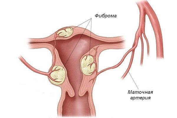 Що таке фіброз матки