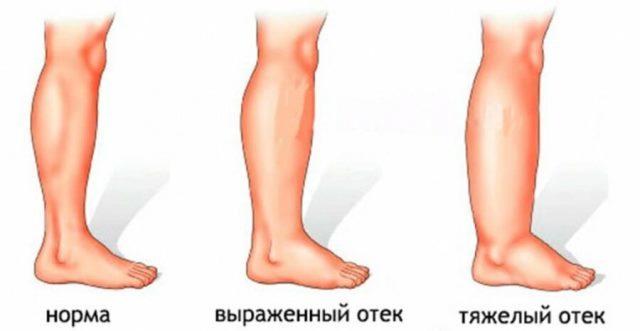 Набряки у жінок при клімаксі
