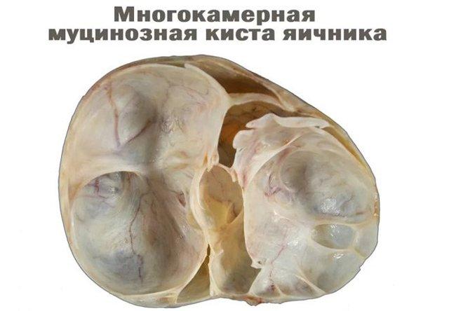Цистаденома яєчника: серозна, папілярна, грубососочковая