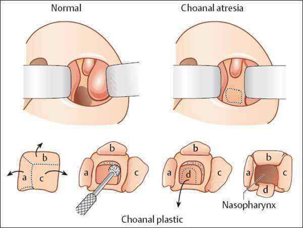 Атрезія хоан: причини появи, симптоми і лікування, операція