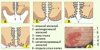 Що таке метаплазірованном епітелій шийки матки
