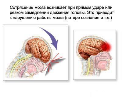 Йде кров з носа і болить голова: причини і що робити
