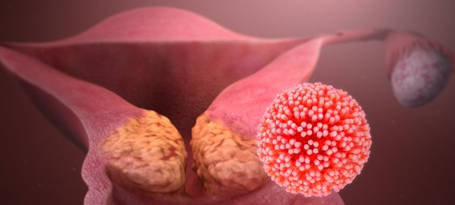 Перші ознаки раку шийки матки