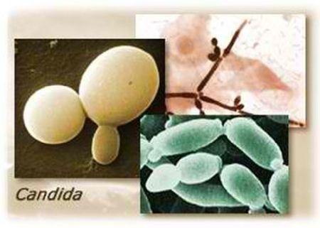Лікування молочниці флюкостат у жінок