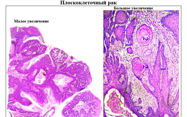 Плоскоклітинна карцинома шийки матки