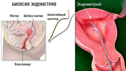 Що таке синехії в порожнині матки