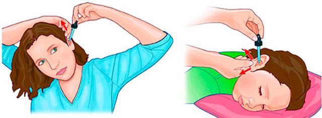 Отіпакс: інструкція із застосування вушних крапель для дітей і дорослих, аналоги