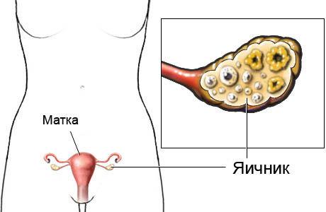 Яєчники: розташування, будова, функції, захворювання
