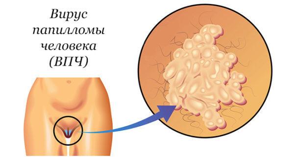 Радіохвильове лікування дисплазії шийки матки
