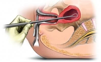 Що таке ендоміометрит