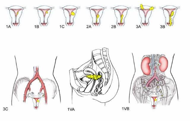 Неороговевающий плоскоклітинний рак шийки матки