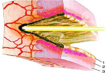 Лікування шийки матки лазером
