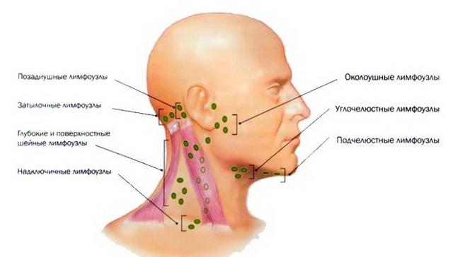 Запалився лімфовузол за вухом: причини, як лікувати і що робити
