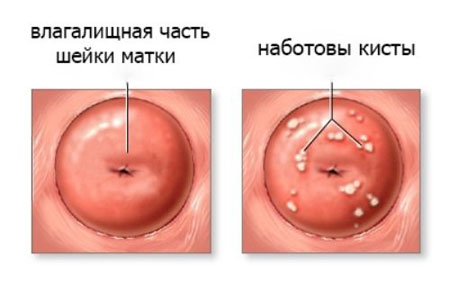 Симптоми і лікування кісти шийки матки