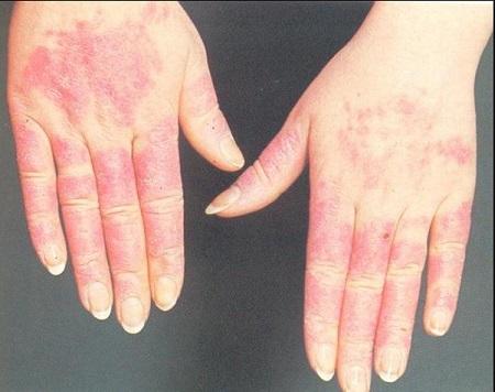Холодової риніт: алергічна реакція на холод симптоми і лікування у дорослих