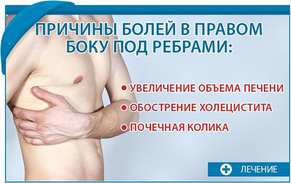 Болять ребра при кашлі: причини, симптоми, методи діагностики і способи лікування