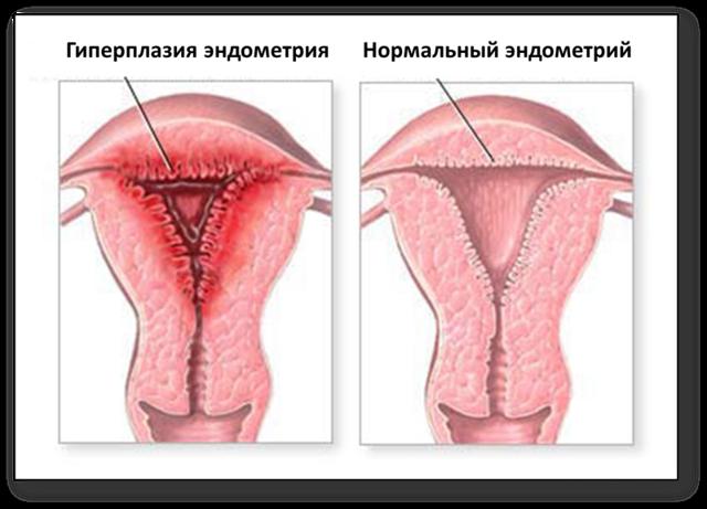 Ендометрій тіла матки