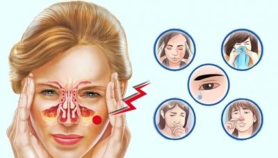 «Супрастин» при нежиті, гаймориті і закладеності носа для дітей і дорослих
