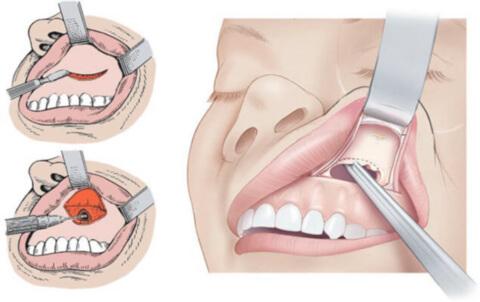 Операція при гаймориті: як роблять чистку пазух носа?