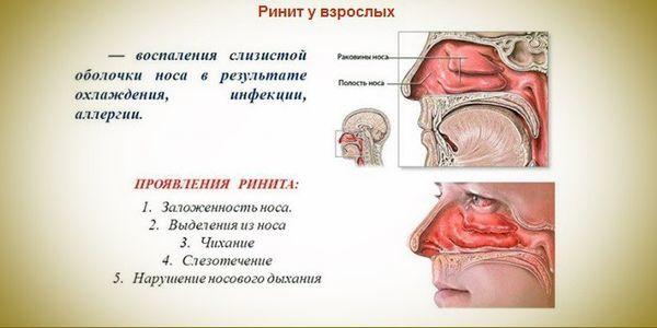Температура 37, болить горло і нежить: що за хвороба і як лікувати?
