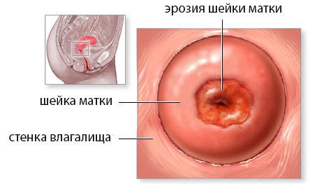 Радиоволновая коагуляція шийки матки