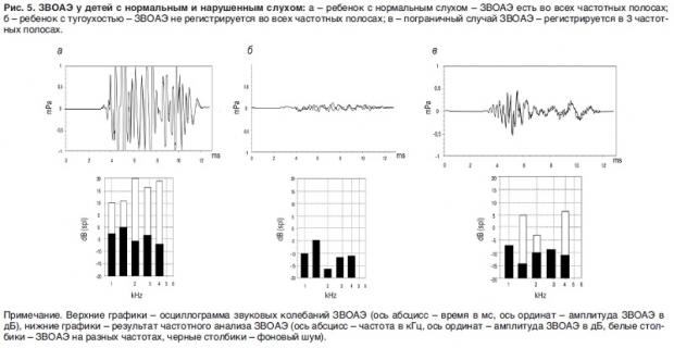 Перевірка слуху у новонароджених в пологовому будинку апаратом і результати дослідження