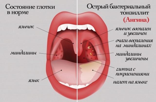 Болить горло, боляче ковтати, температури немає і віддає у вуха: лікування
