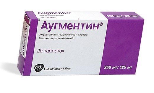 Антибіотики при фронтите у дорослих: якими краще лікуватися?