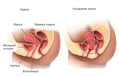 Зміщення матки: вправо, вліво