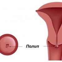 Причини поліпа в шийці матки
