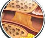 Чорна сірка в юшці у людини: причини, симптоми і лікування