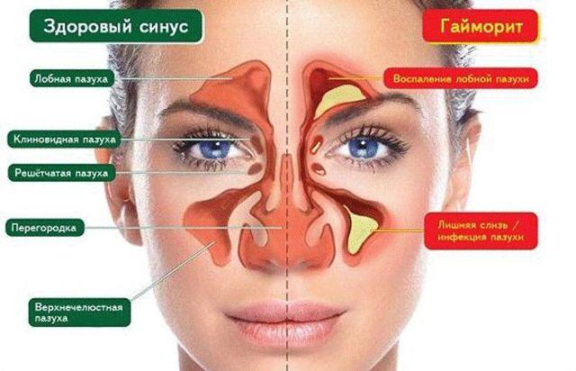 Хронічний гайморит (синусит): симптоми і лікування у дорослих назавжди