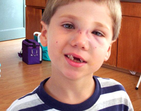 Перелом носа у дитини: симптоми, ознаки та лікування