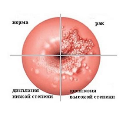 Що таке рак шийки матки