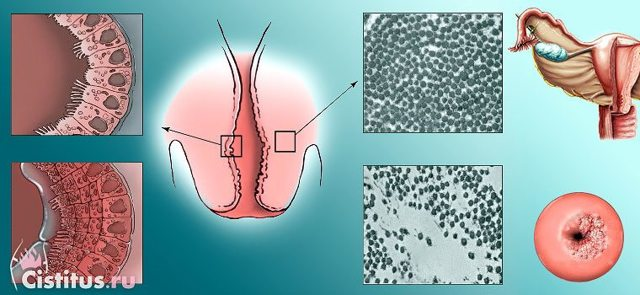Рубцова деформація шийки матки