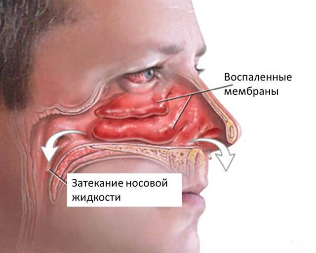 Бактеріальний синусит (гайморит): симптоми і лікування, які бактерії викликають