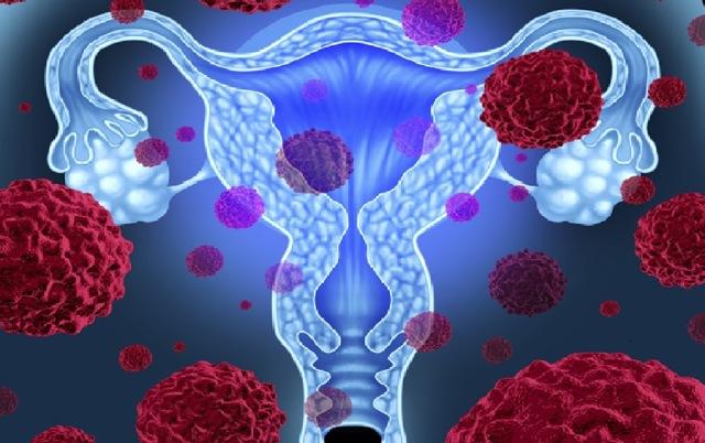 Прогноз раку шийки матки
