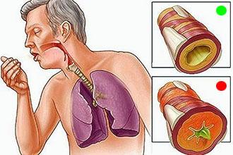 Гірчичники і компреси при ларингіті: чи можна ставити на горло дорослому і дитині