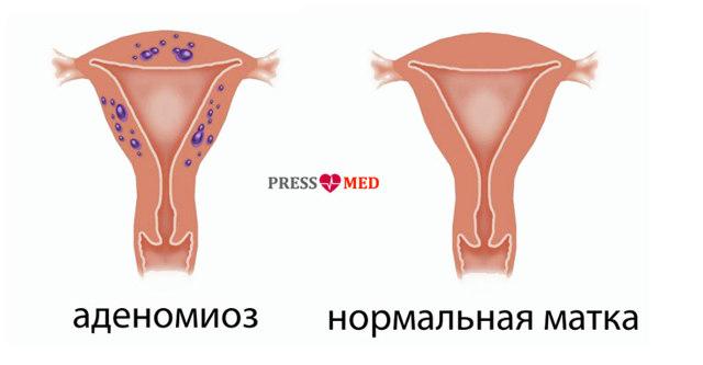 Що називають аденоматозом матки