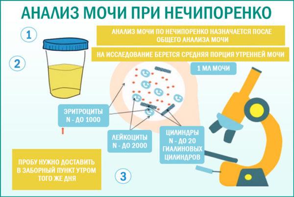 Поганий аналіз сечі при вагітності