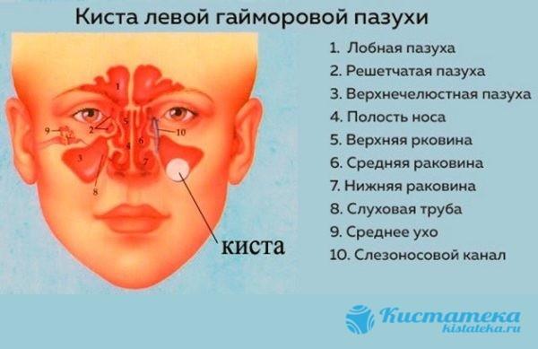 Кіста гайморової пазухи: у чому загроза, симптоми і лікування, операція