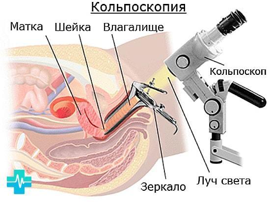 Цервікальна ектопія шийки матки