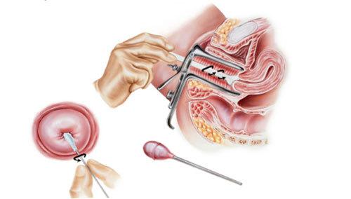 Лейкоцити в цервікальному каналі