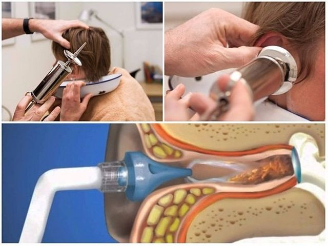 Пробка у вусі: як видалити в домашніх умовах самостійно