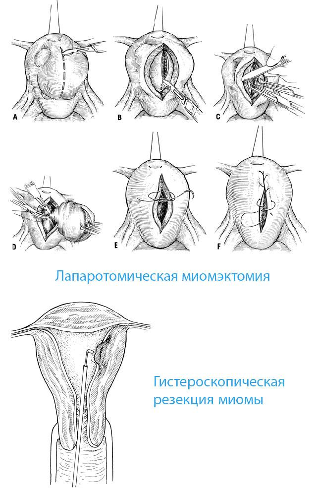 Що таке міомектомія