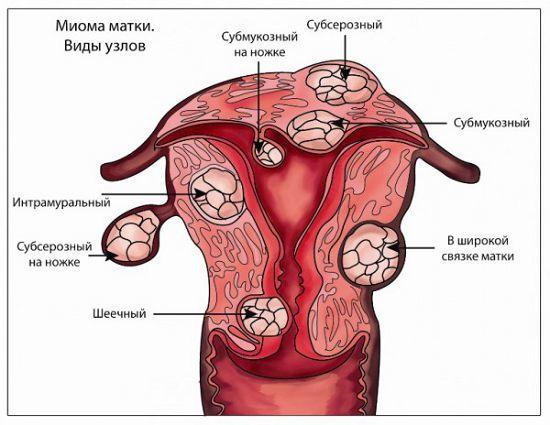 Вузлова міома матки